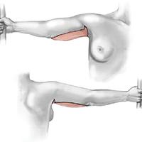 brachioplastica-braccia