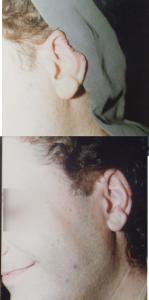 Otoplastica-ricostruzione-orecchio