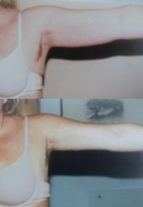 Liposuzione Napoli dr. Albina D'Alessandro