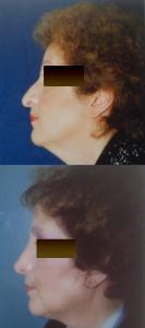 LIFTING del volto E RINOPLASTICA