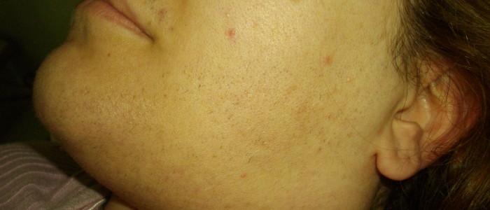 depilazione laser risultato dopo 10 trattamenti