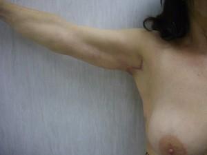 lifting braccia dopo_Dott.essa Albina D'Alessandro