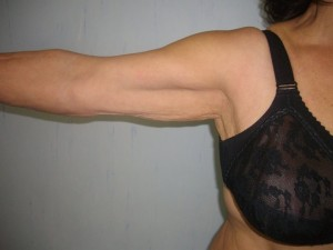 lifting braccia prima_Dott.essa Albina D'Alessandro