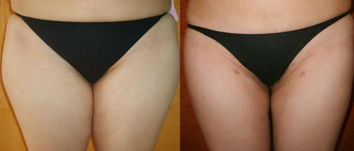 prima-e-dopo-correzione interno cosce con liposcultura ad ultrasuoni