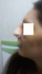 rinoplastica-medicazione-post-operatorio