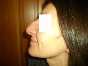 Rinoplastica-prima-dell'operazione