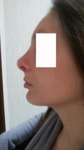 Dott. Albina D'Alessandro - Rinoplastica-risultato