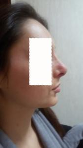 Dott. Albina D'Alessandro- rinoplastica-post-operazione-profilo