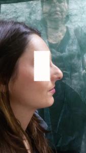 rinoplastica-preoperatorio Dott. Albina D'Alessandro