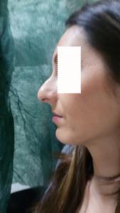 Dott. Albina D'Alessandro- rinoplastica-preoperatorio-2